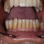 Specialist Tooth Replacement in Abermorddu 9