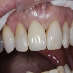 Specialist Tooth Replacement 8