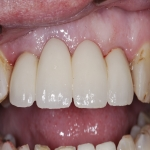 Whole Mouth Tooth Implants in Cheshire 11