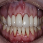 Whole Mouth Tooth Implants in Cheshire 7