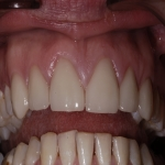 Whole Mouth Tooth Implants in County Durham 5