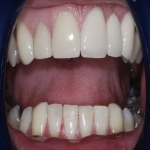 Artificial Tooth Crown in Ashley 1