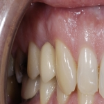 Artificial Tooth Crown in Ashley Heath 8
