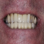 Whole Mouth Tooth Implants in County Durham 2