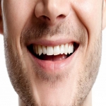 Laser Teeth Whitening Experts in Aberdeen City 3