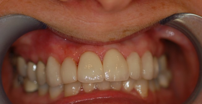 Dental Veneer Services