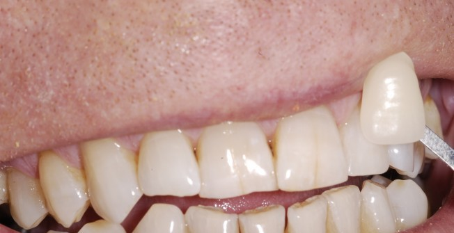 Clear Tooth Whitening in London