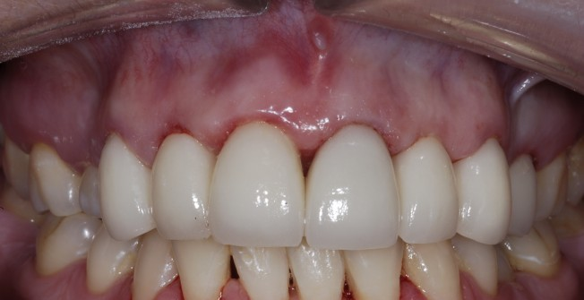 Tooth Restoration Assistance in Addlestone