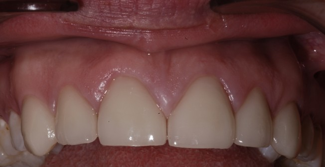 Durable Specialist Veneers in Daw's Cross