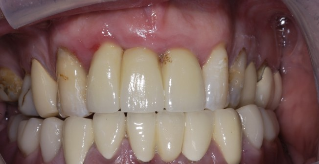 Applying Dental Bridges in Shierglas